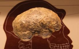 مغز انسان چگونه 6 برابر بزرگتر از حد انتظار رشد کرد ؟
